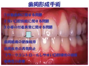 歯周形成手術の問題.png